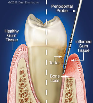 periodontal dentistry